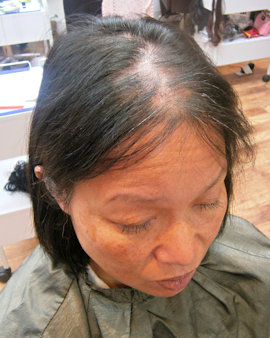 Managing Female Hair Loss Lucinda Ellery Los Angeles And