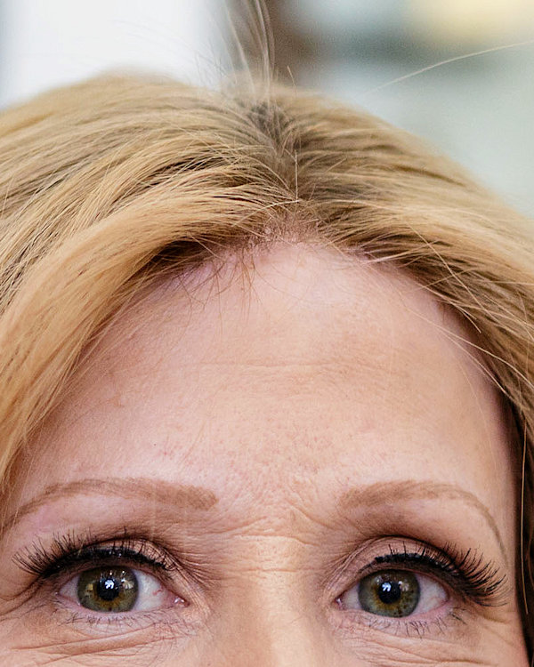 Frontal Fibrosing Alopecia Disguising The Effects Lucinda Ellery