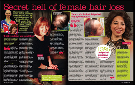 Best magazine hair loss article