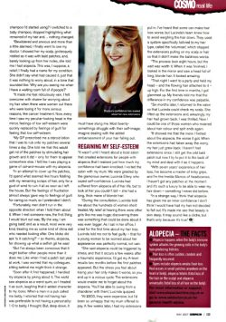 Article about Bryony Gordon and Alopecia - page 2