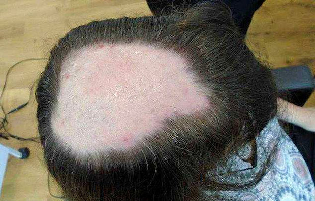 Showing severe hair loss