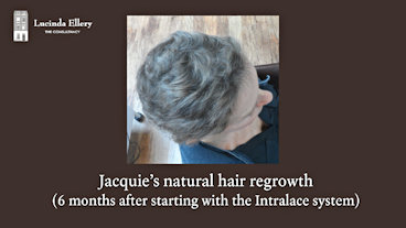 Jacquie talks about how her own hair regrew afterwards